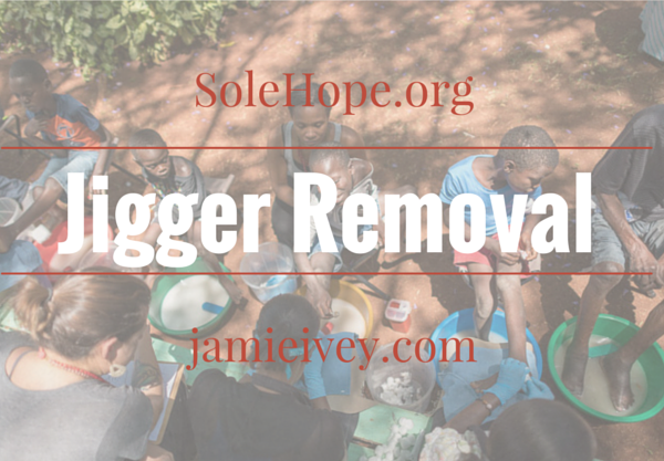 Sole Hope: Jigger Removal
